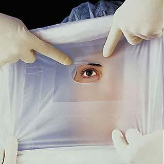 "Steri-Drape Ophthalmic Surgical Drape,51"""" x 51"""" 881060"