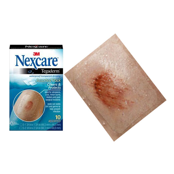 Nexcare Tegaderm Waterproof Transparent Dressing, 10 Count, Assorted Sizes 88TEGA10